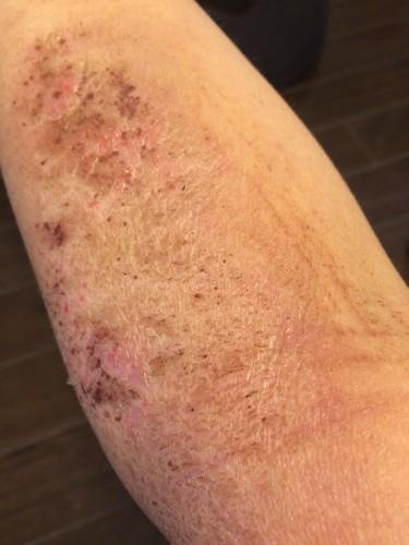 429皮膚炎