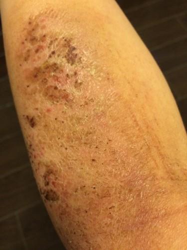 430皮膚炎
