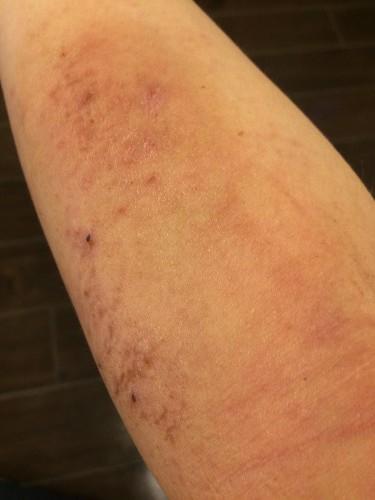 507皮膚炎