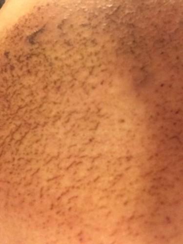 712皮膚炎