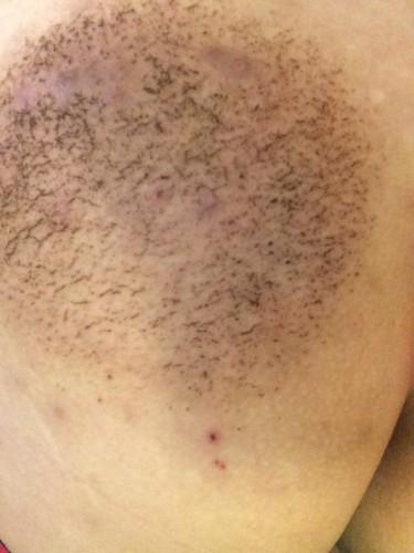 715皮膚炎