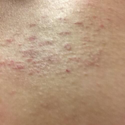 20160104皮膚炎