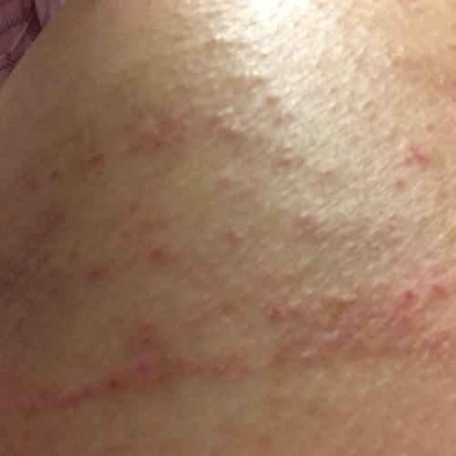 20160105皮膚炎