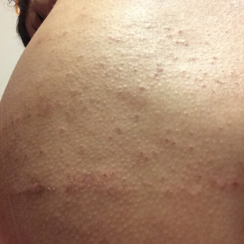 20160106皮膚炎