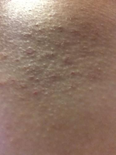 20160109皮膚炎