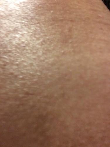 20160115皮膚炎